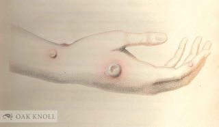 AN INQUIRY INTO THE CAUSES AND EFFECTS OF THE VARIOLAE VACCINAE: A DISEASE DISCOVERED IN SOME OF THE WESTERN COUNTRIES OF ENGLAND, PARTICULARLY GLOUCESTERSHIRE, AND KNOWN BY THE NAME OF THE COW POX.